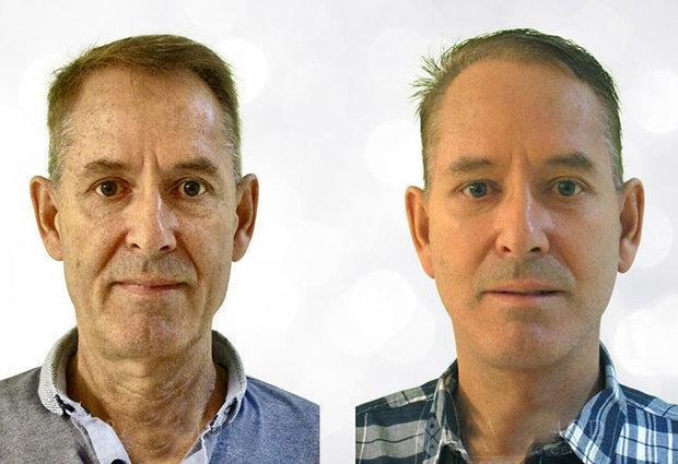 توصیه هایی برای پیشگیری از پیری پوست